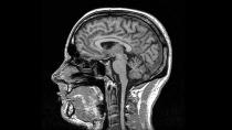 MRI_blackandwhite